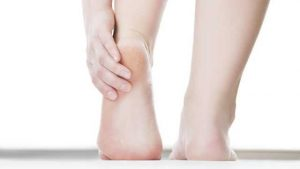 How To Remove Cracked Heels