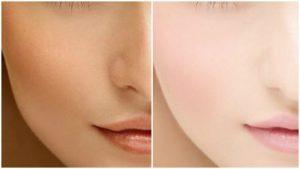 Full Body and Skin Whitening Treatment