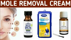 Removal Creams For Skin Tags