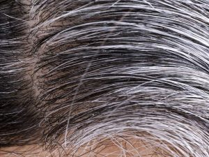 Healthy And White Hair