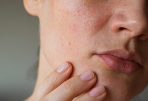Getting Rid of Open Pores