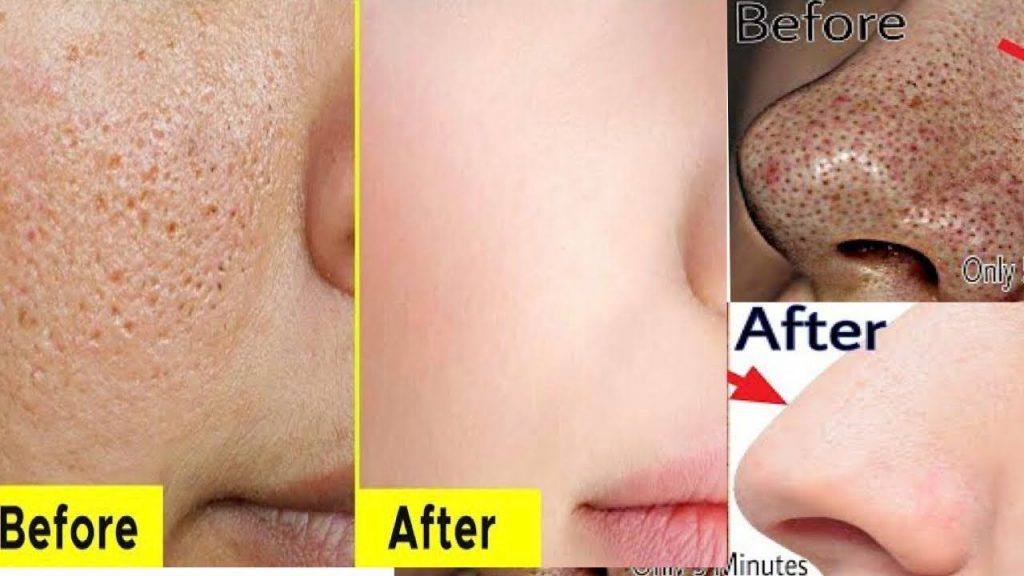 Tips For Getting Rid Of Open Pores