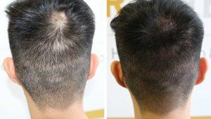 Hair Density