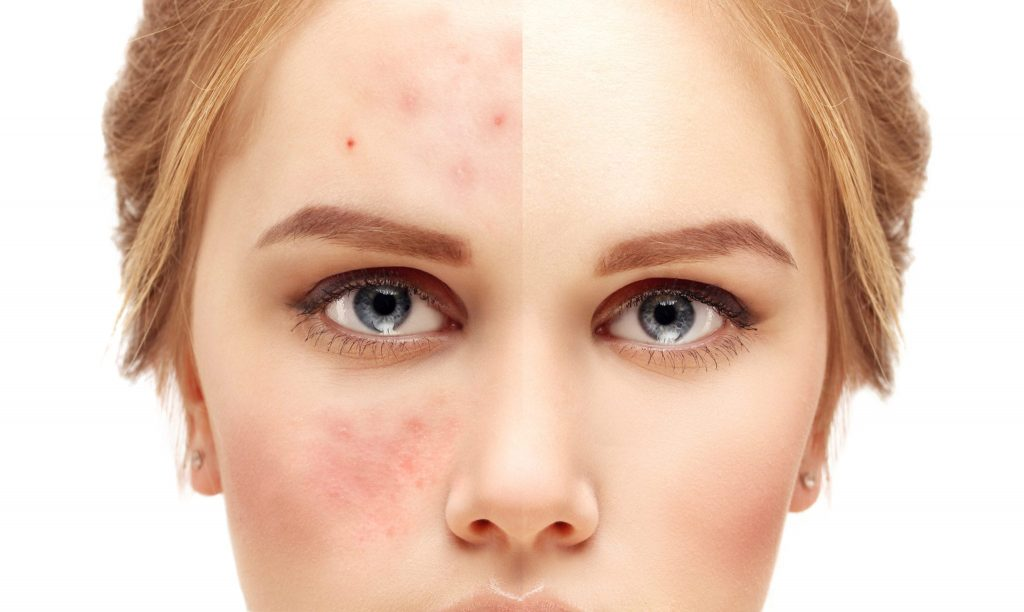 Acne Care Tips For Teenage