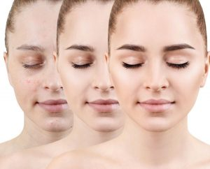 Acne Care Tips For Teenage Girls