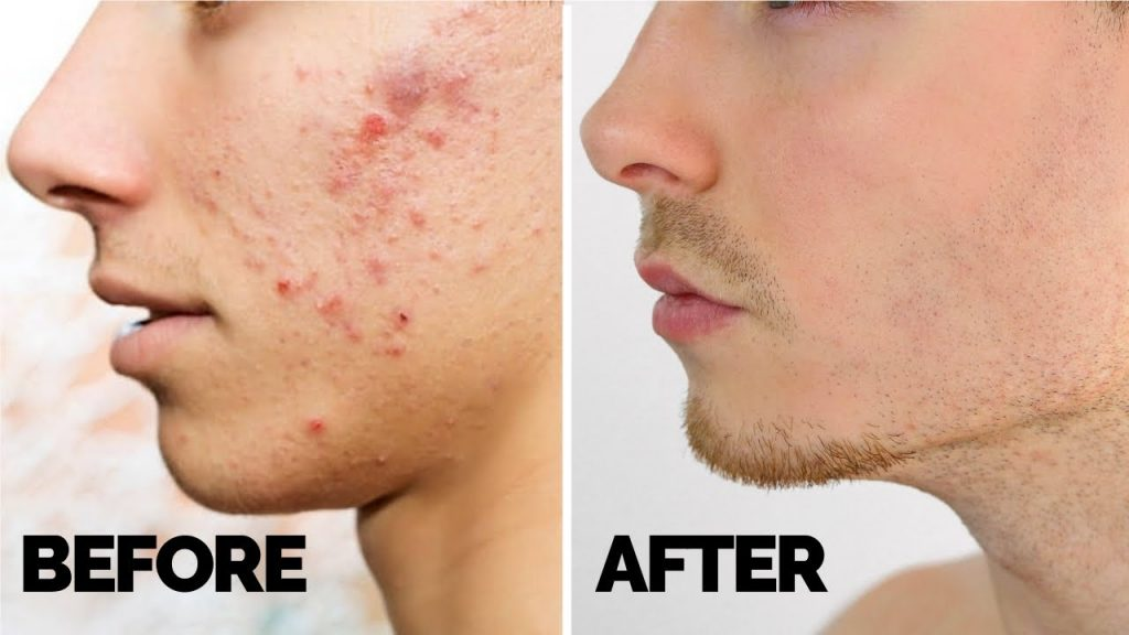 Acne Care Tips for Boys