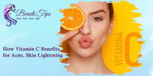 How Vitamin C Benefits for Acne, Skin Lightening?