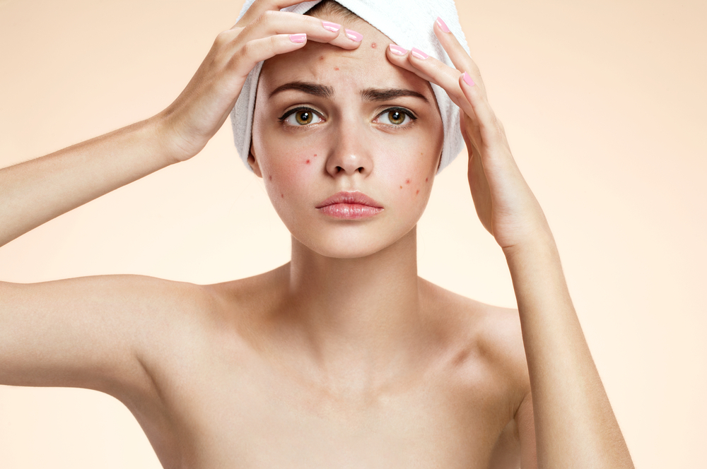 Remove Pimples overnight